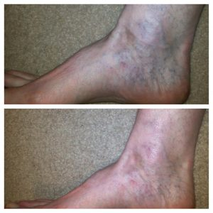 Ankle-Veins