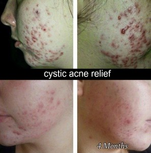 Jan-2016-girl-acne-4-months