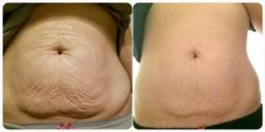 Weightloss-belly-skin